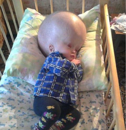 60972 Инвалидность и очередная потеря: как живут родители мальчика с гигантской головой после его смерти