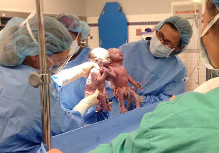 62245 Самые родные и близкие: девочки-близняшки родились держась за руки