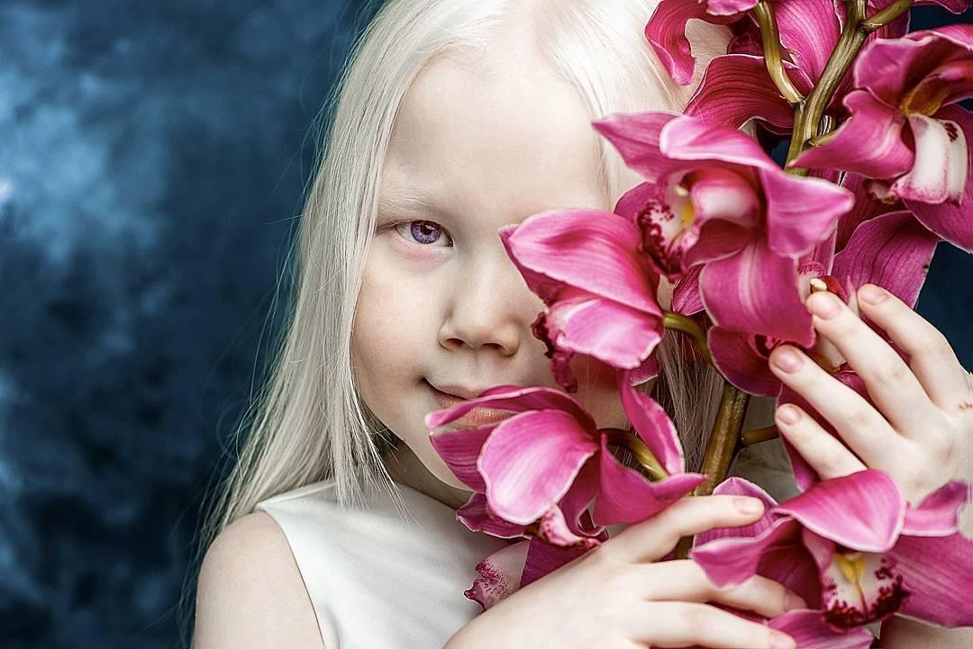 66934 Белоснежка существует: девочка-альбинос покоряет модельные агентства мира