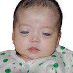 66899 Как сложилась жизнь девочки с «серебряными глазами», которую никто не хотел удочерять